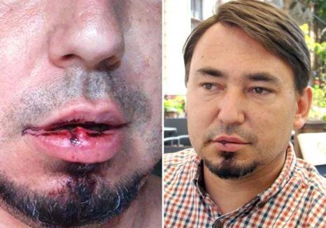 Vice tare-n pumni! Un viceprimar UDMR-ist i-a spart faţa unui consilier PPMT care l-a criticat