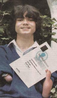 Un orfan român fără antebraţe a primit bursă la Oxford (FOTO)