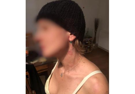 victima a fost strânsă de gât de unul dintre agresori, având urme vizibile foto: arhiva personală