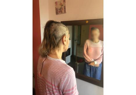 Agresorii şi-au tuns victima cu un aparat de ras, pe care anchetatorii au şi găsit-o la faţa locului foto: arhiva personală a victimei