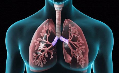 Bronhopneumopatia Cronică Obstructivă (BPCO): Ce înseamnă această boală şi cum se tratează