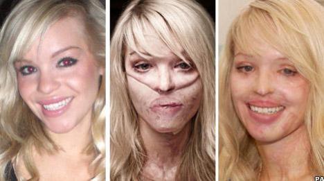 E iar fotomodel, după ce a fost desfigurată cu acid!