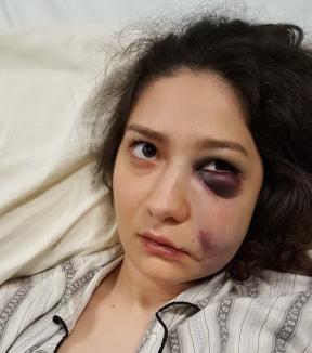 Bătaie în pasajul Vulturul Negru: O tânără a ajuns la spital, bătută de doi bărbaţi pe care ea şi prietena ei i-au refuzat (FOTO)