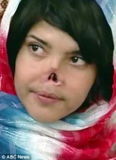 Transformare uluitoare: de la un nas ars la un zâmbet care sfidează Islamul