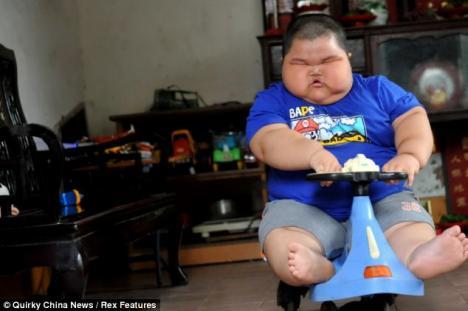 Cel mai gras copil din lume: la 3 ani are 57 de kilograme