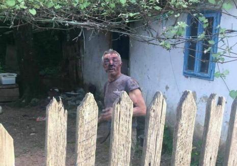 Teroare la Dobreşti: Bătut crunt de un bolnav psihic, un sătean din Luncasprie s-a închis în casă, de teamă să nu fie atacat din nou