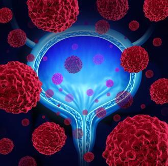 Cancerul vezicii urinare. Care sunt semnele clinice ale bolii