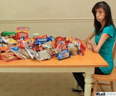 Din cauza unei boli rare, o tânără are doar 27 de kilograme!