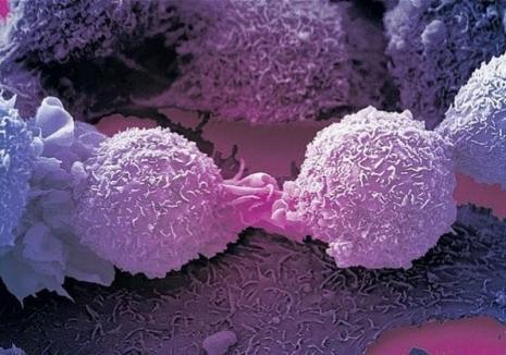 A fost descoperită celula care ar putea sta la baza unui tratament universal împotriva cancerului!