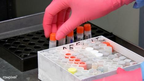 Record de 190 de testări pentru coronavirus într-o singură zi în Bihor: 4 noi cazuri și o persoană vindecată!