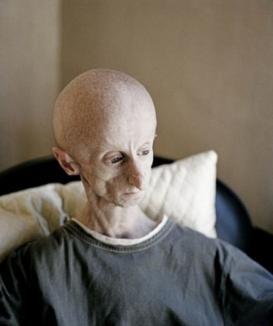 Omul cu chip de extraterestru! (FOTO)
