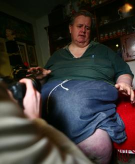 Cel mai gras român: 350 de kilograme şi o viaţă de calvar!