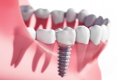 Implantul dentar: Ce se întâmplă când implantul e necesar, dar pacientul nu are suficient os pentru aplicarea lui
