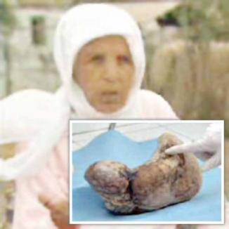 A fost însărcinată timp de 30 de ani!