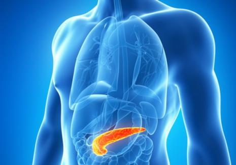 Pancreatita acută