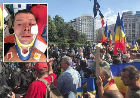 Se reaprinde flacăra protestelor: Un orădean, rănit de jandarmi la mitingul diasporei. Sute de orădeni au ieșit în stradă (FOTO / VIDEO)