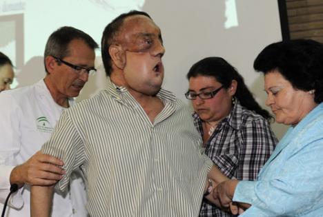 Primele fotografii cu bărbatul care a suferit un transplant de faţă (FOTO)