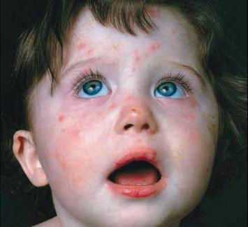 DSP Bihor: alertă la infecţiile respiratorii şi epidemie de rujeolă