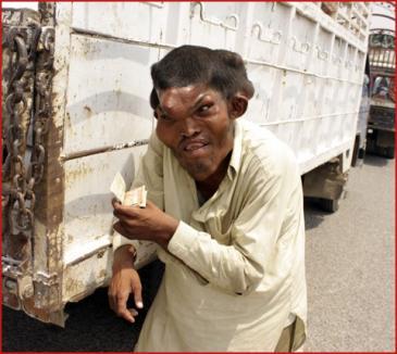 Un bărbat din Afganistan are corpul complet deformat (FOTO)