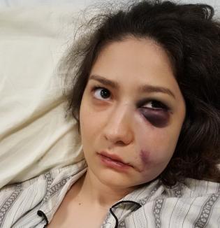 Chef... de pumni: De la cine a pornit bătaia în urma căreia o orădeancă a ajuns cu ochiul învineţit la spital?