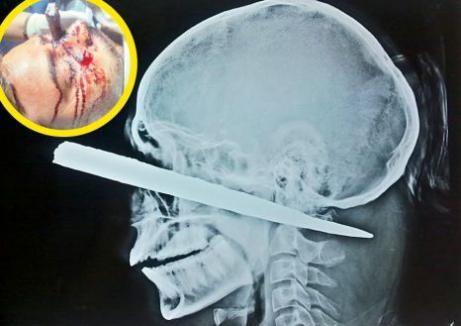 Trăieşte după ce i-a intrat un piron de 25 de cm în cap