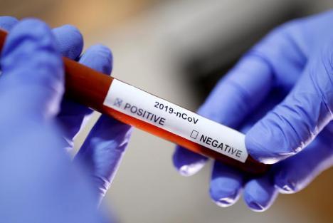 RAPORTAREA OFICIALĂ: 46 de cazuri confirmate de coronavirus în judeţul Bihor