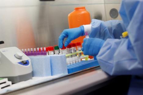 Lupta cu coronavirusul: Peste 3.300 de teste, prelucrate într-o singură zi în România. Dintre cei bolnavi, doi sunt în stare gravă