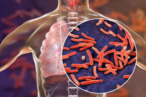 Tuberculoza: De câte forme este, cum se previne și cum se tratează?