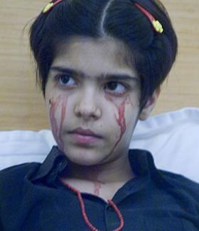 Fata care plânge cu lacrimi de sânge!