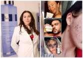 'Dermatoloaga vedetelor', acuzată că a vândut produse toxice pentru ten, cu ajutorul influencerilor: 'Faţa mea a început să se descompună'