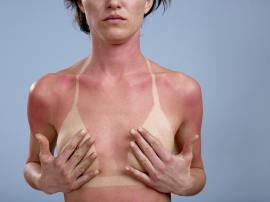 Radiaţiile ultraviolete şi organismul