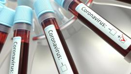 'Scenariul doi': 29 de cazuri de coronavirus, confirmate în România